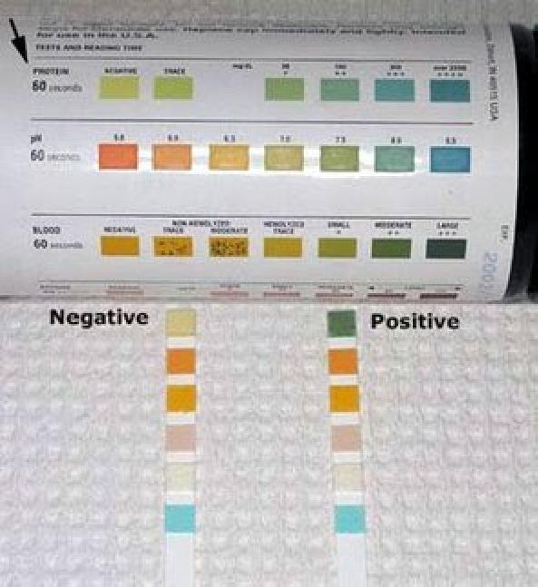 Diabetes 3 Month Test Results