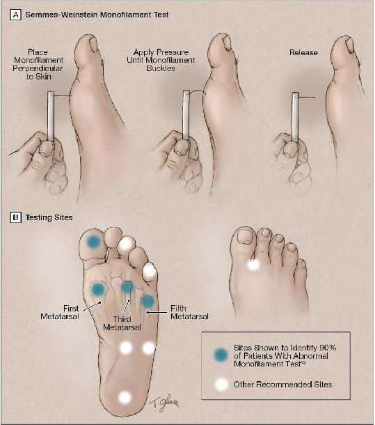 Diabetic Foot And Pressure Ulcers Diabetes And Pressure Ulcers