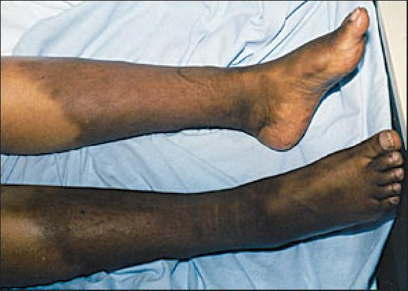 Diabetes Swollen Feet And Ankles Diabetes Swelling Feet