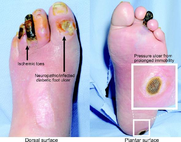 Diabetic Foot Infection Treatment Guidelines Idsa Diabetic Foot Infection Treatment