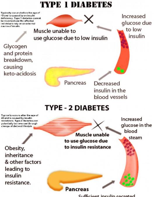 Diet For Borderline Diabetic Uk - Diet For A Borderline Diabetic