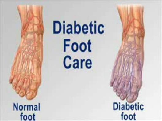 Help For Diabetic Nerve Pain In Feet Help For Diabetic Nerve Pain
