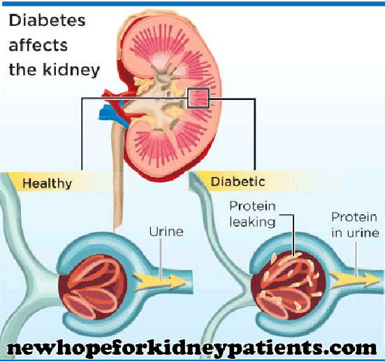 How Does Diabetic Nephropathy Cause Renal Failure How Does Diabetes Cause Nephropathy