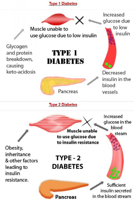 how to gain weight for diabetics