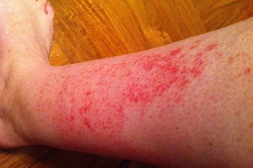 Red Leg Rash Diabetes