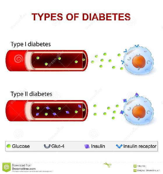 Non Insulin Dependent Diabetes Mellitus Results When Quizlet - Non