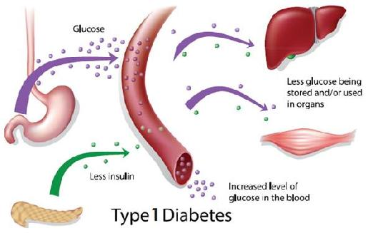 side effects of diabetes mellitus