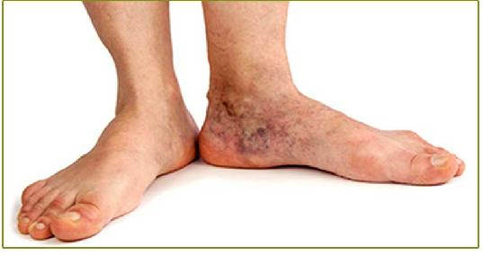 Swelling In Legs And Feet Diabetes