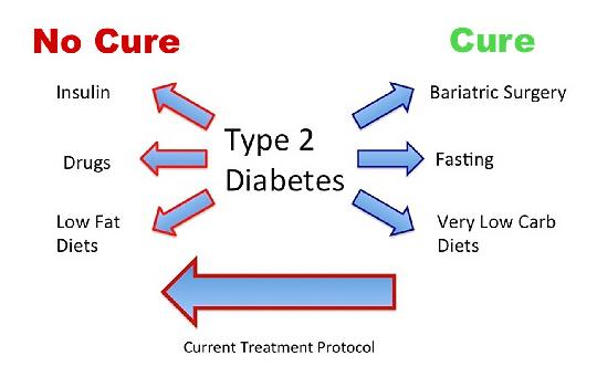 Type 1 Diabetes Cure Latest News 2016 - Type 1 Diabetes Cure Latest News