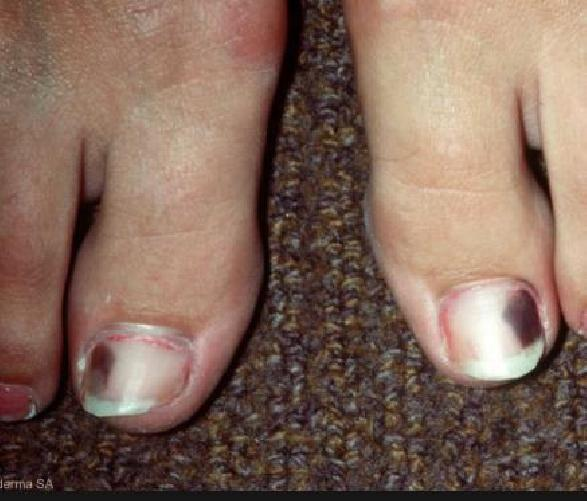 Yellow Toenails Causes Diabetes - Yellow Toenails Diabetes