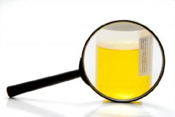 yellow urine diabetes
